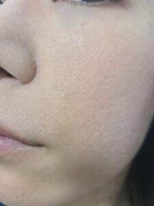 頬の毛穴の開きが改善