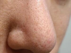 チークポアパッチ鼻使用後