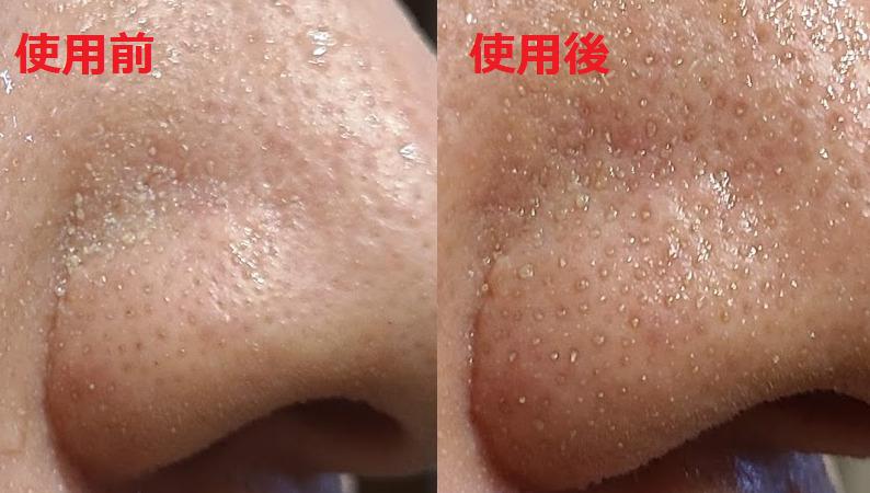 ビーグレンクレイウォッシュ毛穴汚れの効果比較画像