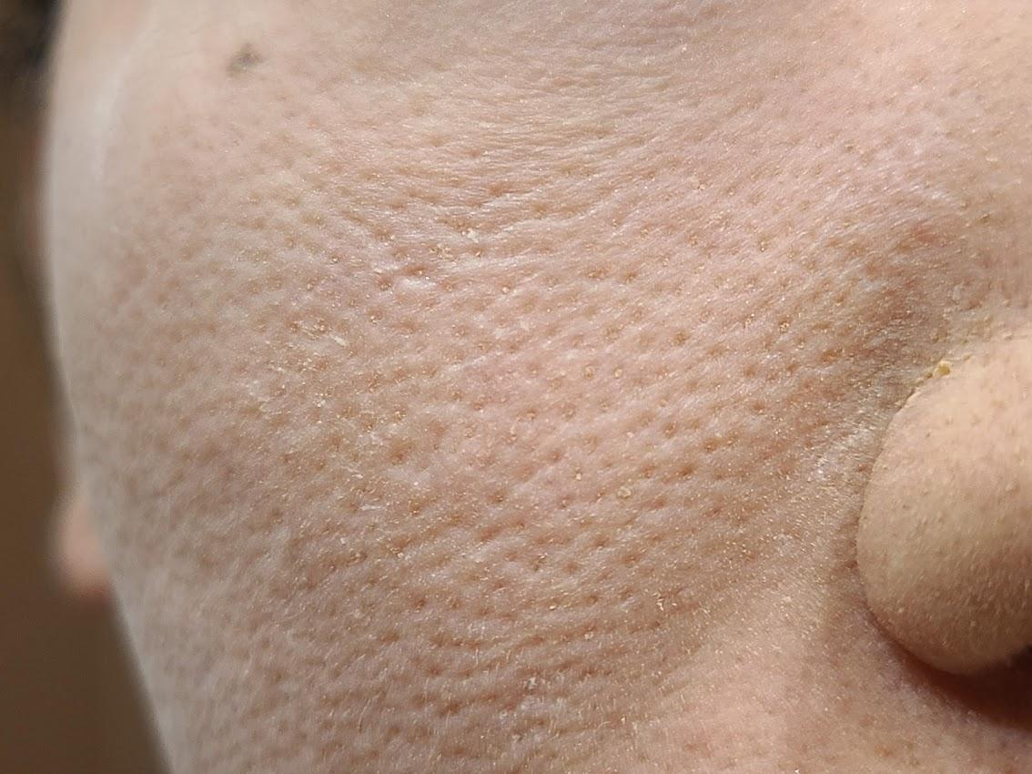 エトヴォスマットスムースミネラルファンデーション頬の毛穴