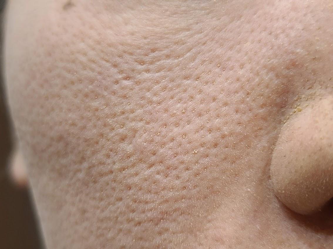 レイチェルワインミネラルファンデーション頬の毛穴