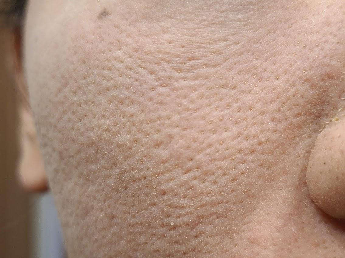 ヴァントルテミネラルシルクファンデーション頬の毛穴